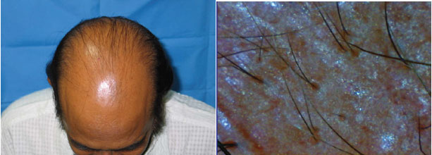 Genetic Baldness treatment in Kerala