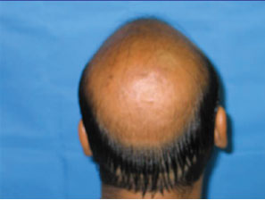 hair transplantation treatment in Kerala