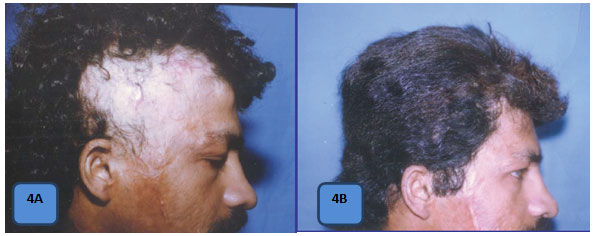 Herbal Treatment for Hair Loss in Calicut