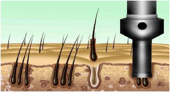 Hair Implant Surgery in Kerala